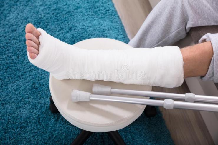 man-s-broken-leg-elevated-view-cast-124743875